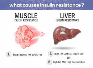 muscle-liver-insulin-resistance