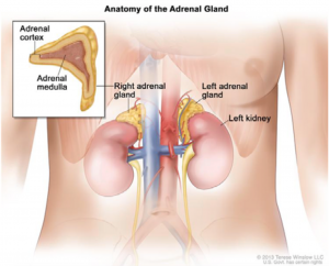 Image result for Congenital adrenal hyperplasia (CAH)
